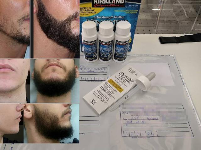 МИНОКСИДИЛ для бороды. Хочешь отрастить густую бороду?🧔 С Миноксидилом это очень просто👌💯 Сделай курс и отрасти бороду мечты👶➡️🧔 У нас только оригинальный Миноксидил Киркланд из США🇺🇸 Сделано в Израиле🇮🇱