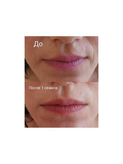 Шугаринг,  ламинирование ресниц,  Комплексный уход за кожей лица +массаж!
